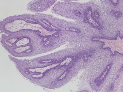 biopsie papilom