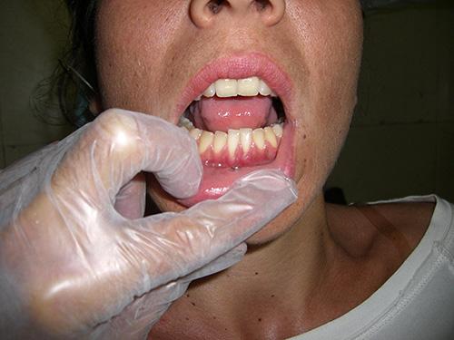 Peca en el labio inferior