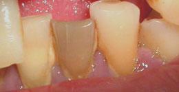 REDOE - Revista Europea de Odontoestomatologia