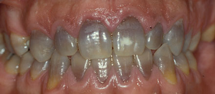 REDOE - Revista Europea de Odontoestomatologia 9d134c09be40